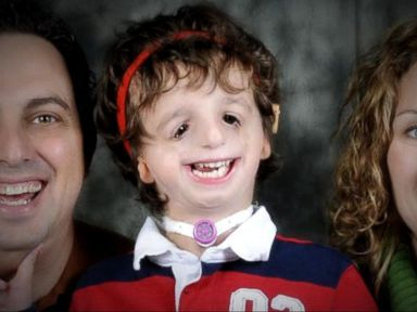 WATCH: Boy born with genetic disorder inspires others with lessons in courage...