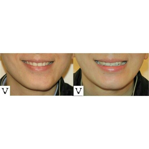 Few units of Botox to fix asymmetrical smile-very inexpensive,  knowing exactly which muscle to inject-priceless :) asymmetry correction is our specialty www.visagesculpture.com #boston #facelift #face #radiesse #juvederm #botox #sculptra #rhinoplasty #nosejob #alternative #injection #expert #newton #asymmetry #correction #reconstruction #hiv #lips #eyes #beauty #taste #youth #young #proportion #selfesteem #juvederm #belotero #merz #galderma #allergan #botox #sculptra