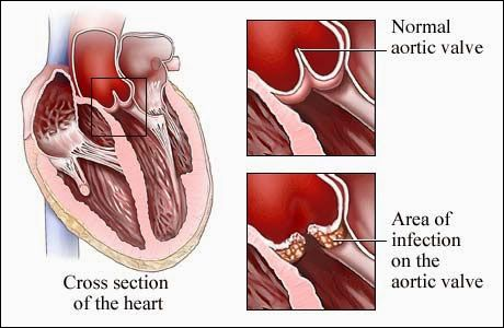 #Ayurvedic #Treatment for #RHD (#Rheumatic #Heart #Disease) - #Symptoms, #Causes, #Diagnosis & #Herbal #Remedies  RHD is a heart disease or #cardiac #inflammation mostly common in #people from 5 to 25 years of age. It is a complication of #rheumatic #fever which starts as #strep #throat generally leading to acute or #chronic heart #disorders. In this #fever, the heart valves get damaged leading to valve disorder. This forces the heart to work harder to #pump #blood and may cause heart…