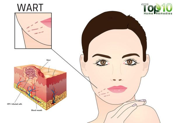 how to remove flat warts