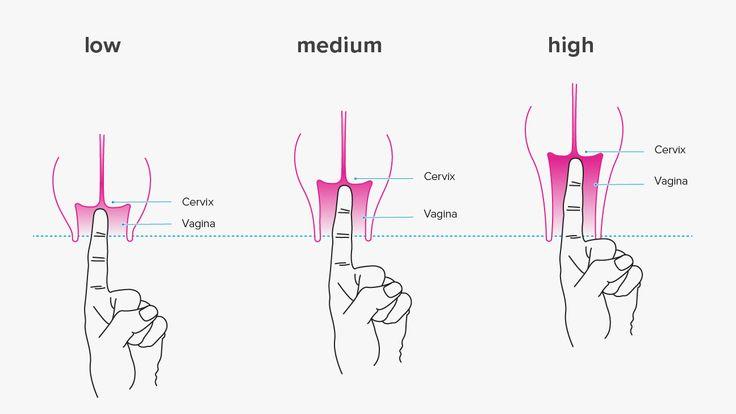 Come cambia il Cervice all'inizio della gravidanza-2921