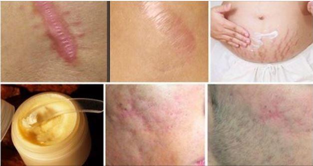 Smagliature e cicatrici? ecco come eliminarle in meno di un mese Credo che quasi tutti possiamo dire di avere sul nostro corpo