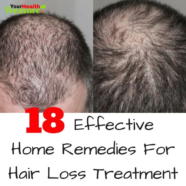 18 Effective Home Remedies For Hair Loss: How To Stop Hair Loss, Hair Falling Out, How To Get Rid Of Hair Loss, Hair Loss Treatment, Home Remedies For Hair Loss, Baldness, How To Prevent Hair Loss, How To Stop Baldness