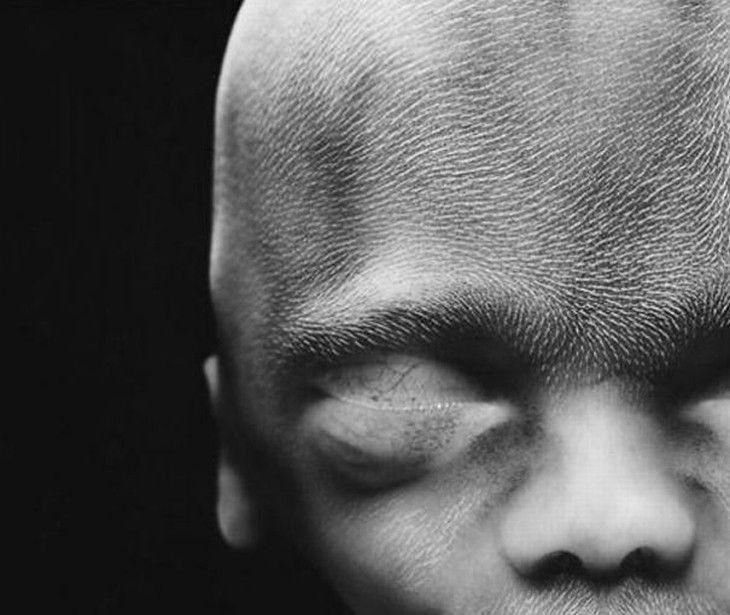 © Lennart Nilsson epois de 20 semanas: Olfato, visão, tato, paladar e audição já fazem parte do bebê; o sistema digestivo pode funcionar e os movimentos do corpo aumentam lentamente. Os primeiros cabelos começam a crescer na cabeça.