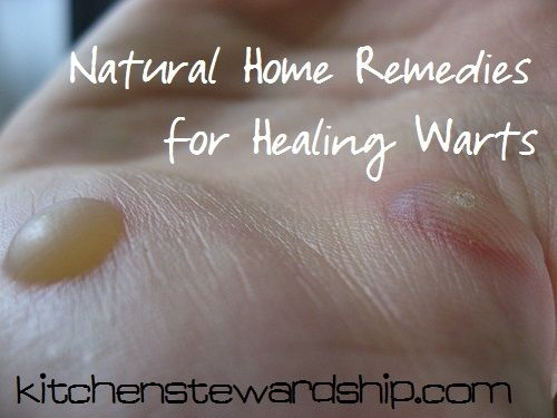 Natural Home Remedies for Healing Warts :: via Kitchen Stewardship #warts #natural #homeremedy