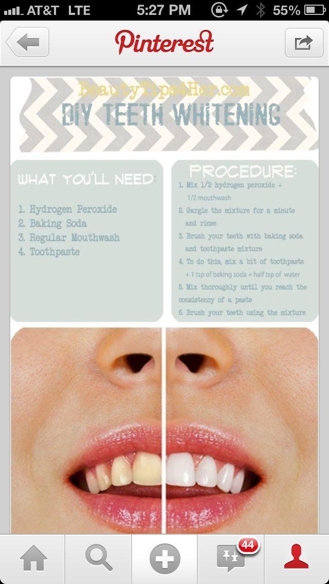 Teeth whitening.  Trying this tonight
