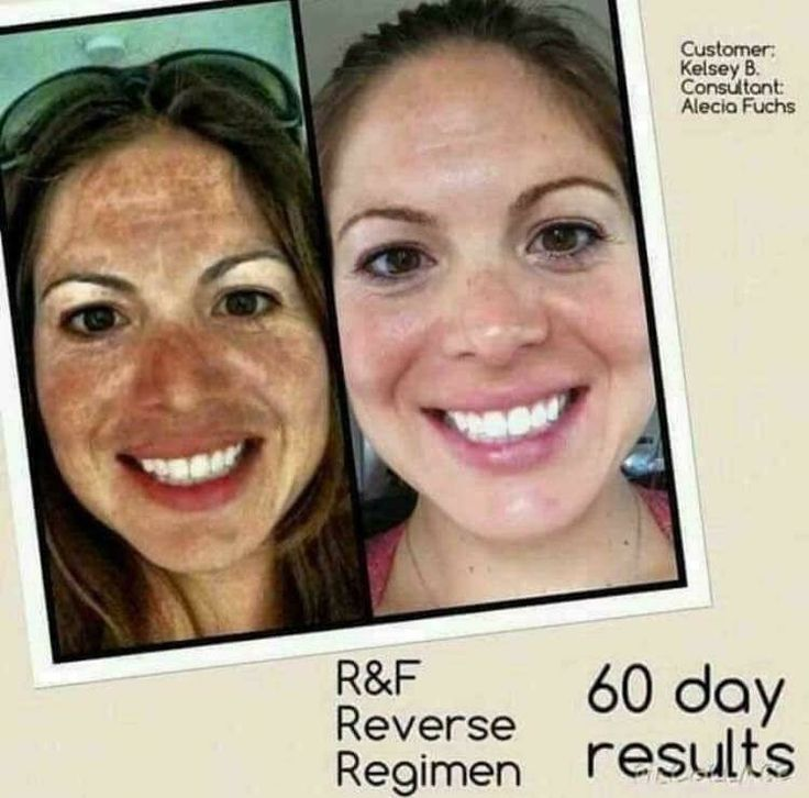 Rodan and fields Regimens // Rodan and fields // Rodan and fields redifine Rodan and fields Regimens // Rodan and fields // Rodan and fields redifine Regimen // Rodan and fields products // Rodan and fields before and after a // beauty // Skincare // Skin Care // Skin Care products // redifine // eyecream // anti aging // Rodan and fields marketing // social media // reverse // Unblemish // soothe // melasma // age spots //