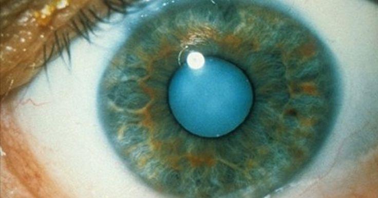 Comment utiliser de l'huile de ricin pour dissoudre les cataractes et obtenir une vision 20/20! Demandez l'avis médical de votre ophtalmologiste avant. http://translate.google.com/translate?sl=en&tl=fr&u=http%3A%2F%2Fjuicing-for-health.com%2Fcastor-oil-to-dissolve-cataracts-perfect-vision  http://translate.google.com/translate?sl=en&tl=fr&u=http%3A%2F%2Fjuicing-for-health.com%2Fcastor-oil-to-dissolve-cataracts-perfect-vision