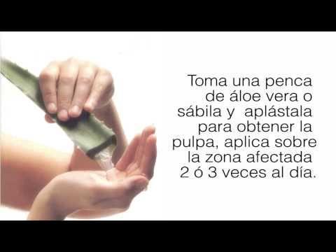 Remedios para Quemaduras de Sol - http://solucionparaelacne.org/blog/remedios-para-quemaduras-de-sol/