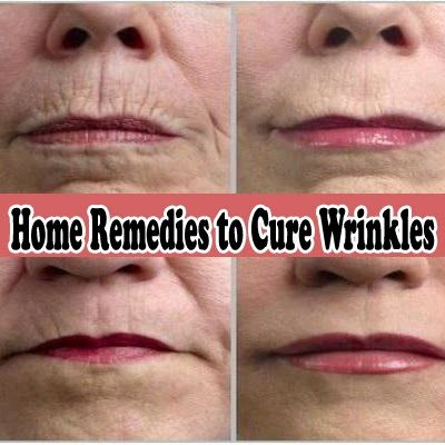Powerful Home Remedies to Cure Wrinkles | Medi Tricks