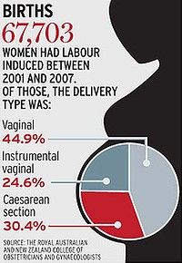 Women who accept induction have a less than 50% chance of normal delivery: