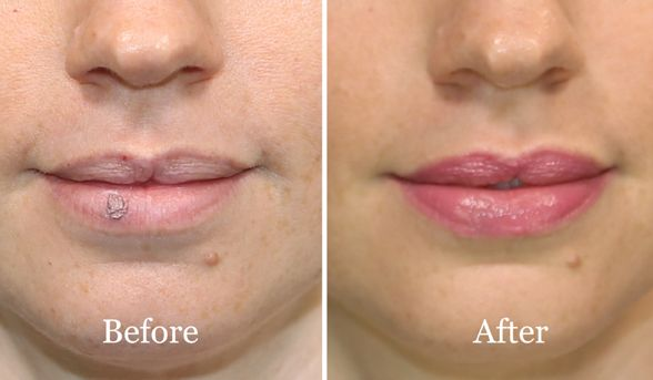 How To Conceal A Cold Sore Cover Up Cold Sore Cold Sore Cold
