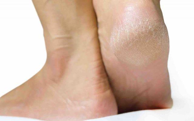 Perchè i talloni diventano screpolati? Spesso con l'aumento delle temperature e in particolare d'estate i nostri piedi diventano secchi e s piedi secchi talloni piedi