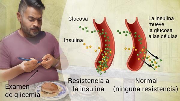 DIABETES MELLITUS TIPO 2 SI USTED ES OBESO O TIENE DESCENDENCIA FAMILIAR, PUEDE SER UN CANDIDATO A PADECER DE ESTE ENFERMEDAD. Con la diabetes tipo 2, la más común, el cuerpo no produce o no usa bien la insulina. Usted tiene un riesgo mayor de tener diabetes tipo 2 si es adulto mayor, tiene obesidad, historia familiar de diabetes o no hace ejercicio. Sufrir de prediabetes también aumenta ese riesgo. Las personas que tienen prediabetes tienen un nivel de azúcar más alto