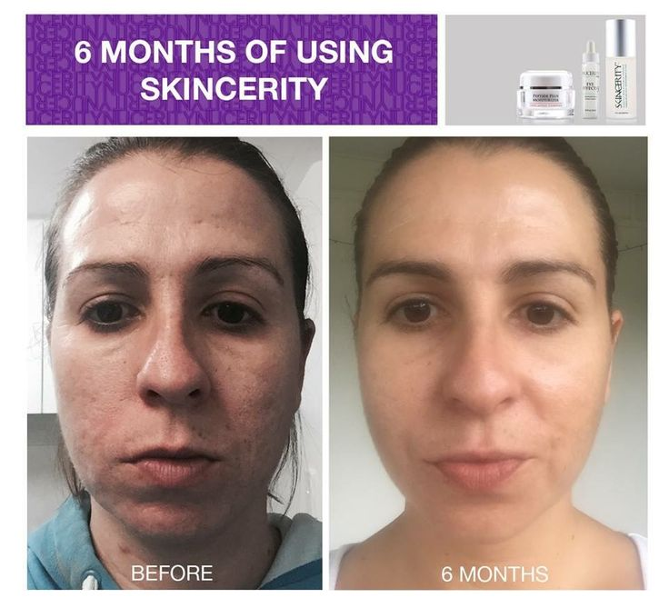 Skincerity creates the right environment for your skin to heal. It seals in your natural moisture to deeply hydrate your skin and to restore and rejuvenate your skin's appearance. I am amazed! www.buynucerity.com/354404