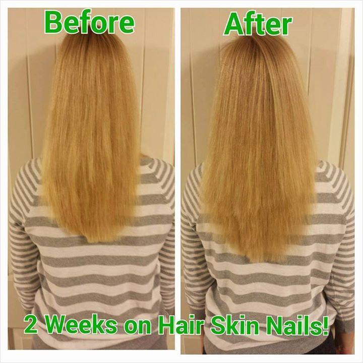 Hair Skin Nails It Works 29919   TRENDNET