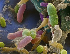 Raster elektronen mikroskop, REM-Aufnahme, verschiedene Bakterien aus einer Stuhlprobe,