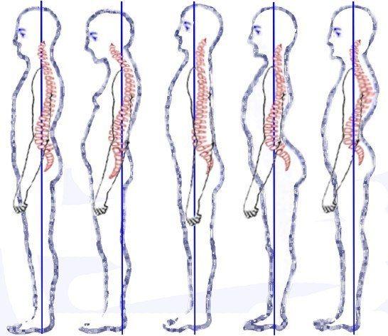 Posture and Balance
