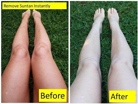 How to Remove Sun Tan From Your Body Instantly,Sun Tan removal,Lighten skin…