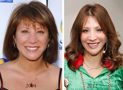 Cheri Oteri Plastic Surgery Before And After – www.celeb-surgery…