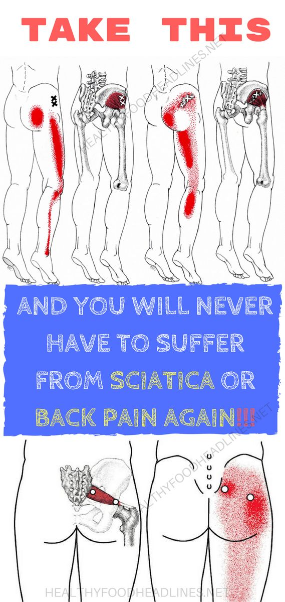 Sciatica is accompanied with pain in the leg and tingling, numbness, or weakness which starts at the bottom of the back, passes through the buttock, and end in the leg. This is a symptom of underly…