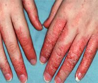 HOME REMEDIES FOR ECZEMA ON HANDS | Home Remedies For Eczema On Hands