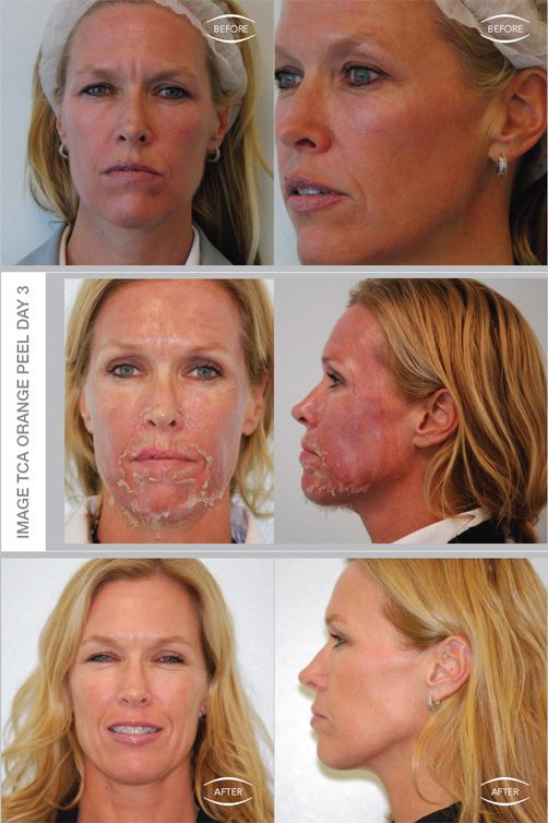 Aging Skin #lanataASC #ImageSkinCare #Denver  Sample of a chemical peel's effects.  There are some peels that are non-chemical