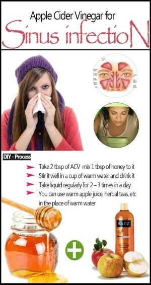 Apple Cider Vinegar for Sinus Infection by Wolfe12