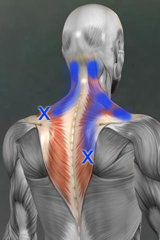 Trigger points in the middle and lower trapezius can cause pain in the neck... Remember to search the whole trapezius in cases of neck pain.