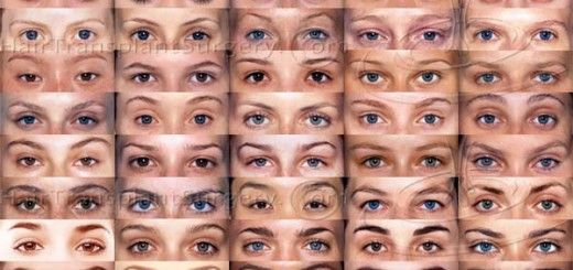 greffe greffes implant implants sourcils eyebrow