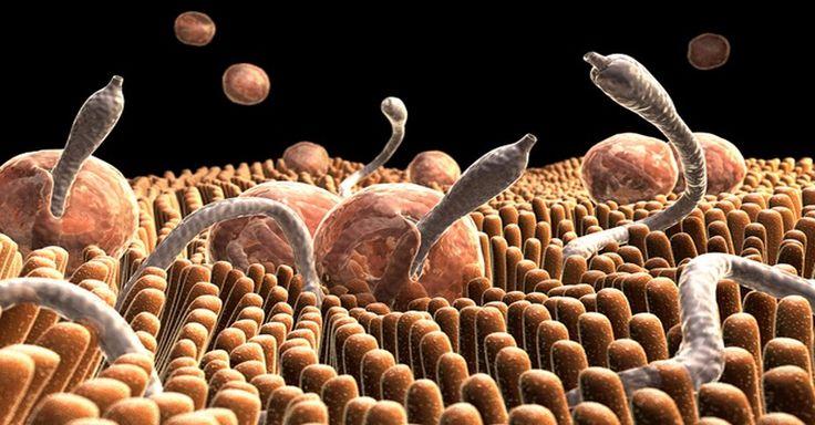 Trápí vás akutní či chronické onemocnění? Příčinou mohou být jiné organismy, které parazitují ve vašich střevech. Takto se jich zbavíte!