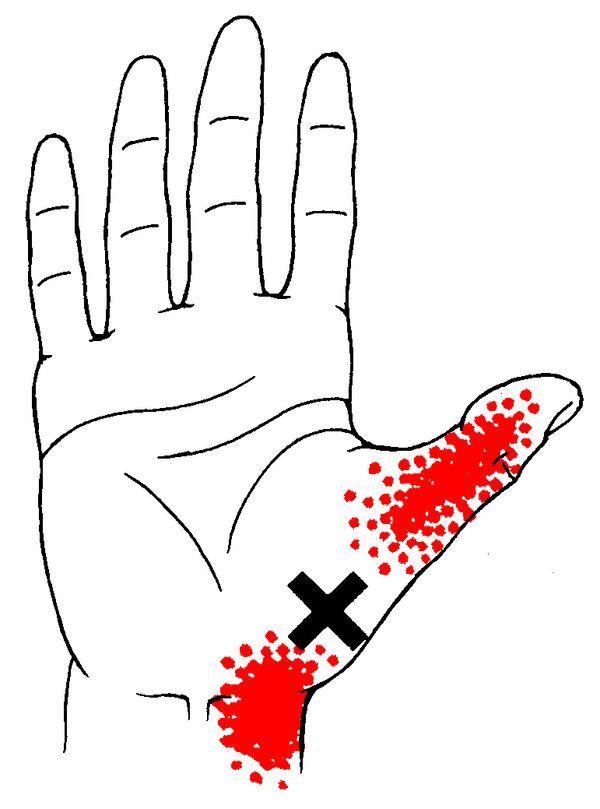 How To Treat Wrist Pain Naturally