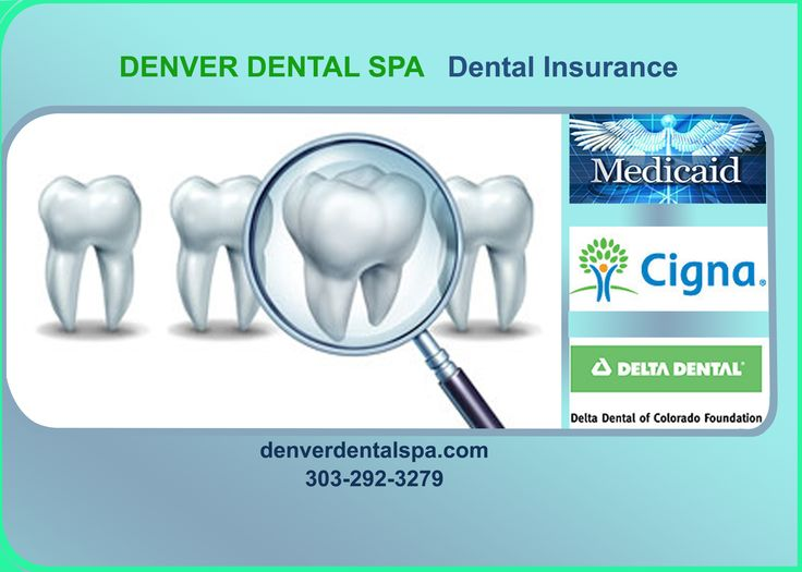Denver dental will support for insurance schemes for the patients. It accepts Medicaid, Delta Dental, Cigna insurance companies. This will help you to pay for the cost of treatment.