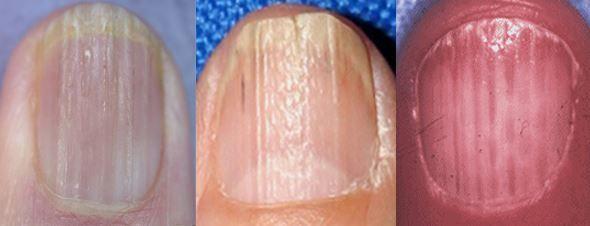 causes of vertical fingernails