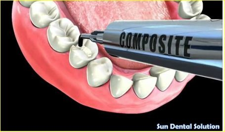 Tooth colored fillings are made from composite glass and resin. Composite resins are favored by most doctors and patients because of their natural look and the fact that composite fillings are mercury free.  #dental_Fillings  http://sundentals.com/