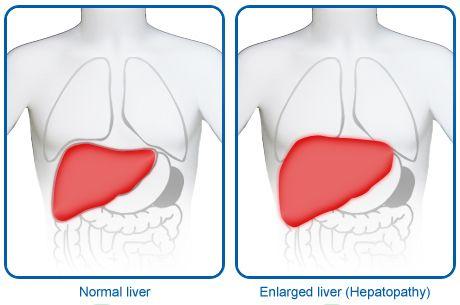 Spleen+Pain | Swollen Spleen and/or Liver - Find Information on Swollen Spleen and ...