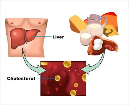 Overview of Cholesterol Facts and Prevention