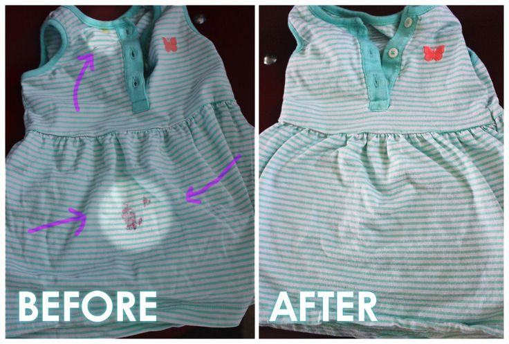 Remove Berry Stains From Clothing Using Baking Soda Dish
