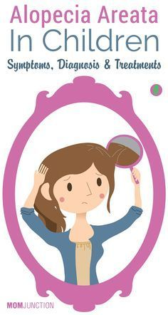 Alopecia Areata In Children – Symptoms, Diagnosis & Treatments