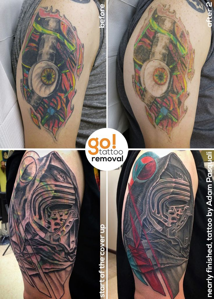 Heavy Black Tattoo Cover Up: 82 Best Images About Tattoo Removal To Tattoo Cover-Up On