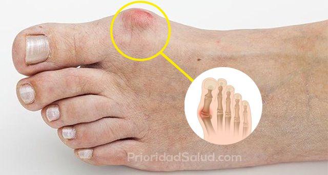 Artrosis articulacion dedo gordo pie
