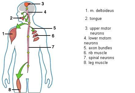 the clinical description of amyotrophic lateral sclerosis als Amyotrophic lateral sclerosis (als) is a neurodegenerative disease of the motor system characterized by focal and then generalized weakness leading to paralysis and death from respiratory failure symptoms arise from the loss of corticospinal (upper), and brainstem and spinal (lower) motor neurons.