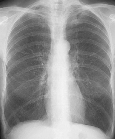 how to get rid of hyperinflated lungs