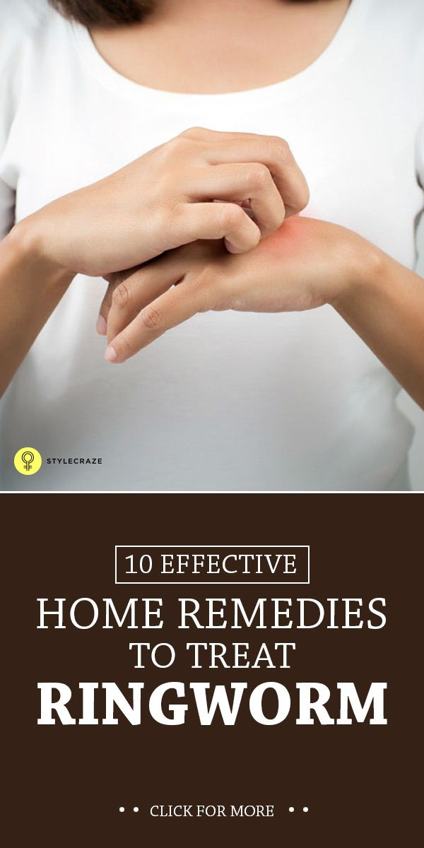Ringworm is a fungal infection of the skin coupled with burning sensation & itching. Listed are the home remedies for ringworm you need to ...