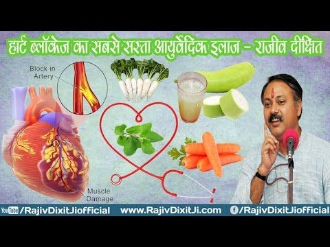 Ayurveda Treatments of Heart Blockage And Many other Diseases By Rajiv D...