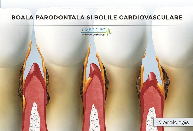 Boala parodontala (parodontoza) este o afectiune determinata de bacterii care se gasesc in spatiul dintre dinte si gingie (santul gingival). Acestea determina inflamatie care, netratata, va duce la resorbtia osului si retragerea gingiei de pe dinte/dintii afectati. In timp, acestia devin mobili si se pot pierde spontan - http://www.i-medic.ro/stomatologie/boala-parodontala-si-bolile-cardiovasculare