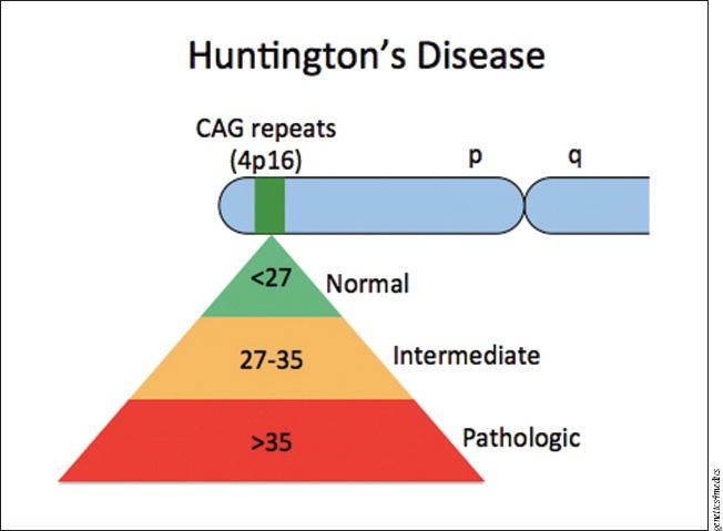 the clinical description of huntingtons disease Huntington disease is a progressive disorder that causes brain cell (neuron) degeneration in certain areas of the brain excellent retention in huntington disease (hd) clinical trials is essential for testing new therapies the stage of disease.