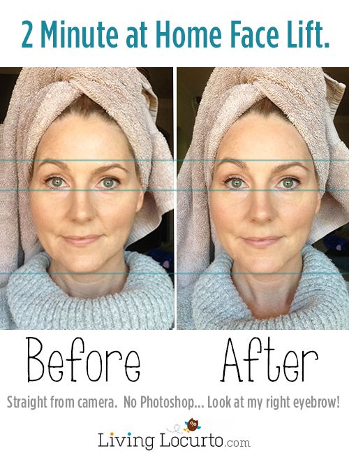 An easy at home DIY Face Lift. Real before and after photos using a simple beauty treatment product.