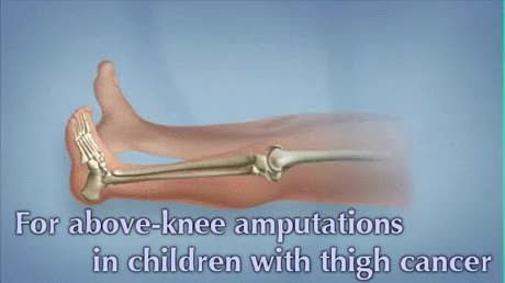 Swapping your knee for your ankle in amputation