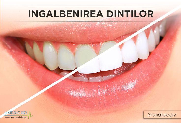 Ingalbenirea dintilor este cauzata de urmatorii factori - http://www.i-medic.ro/stomatologie/ingalbenirea-dintilor